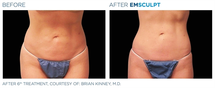 Image related to Emsculpt for Body Contouring